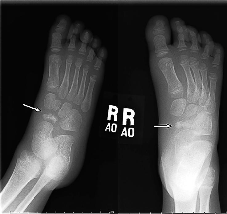 Остеохондропатия плюсневой кости стопы у ребенка и взрослого: симптомы, лечение