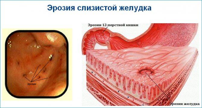 Диетическое питание при эрозии двенадцатиперстной кишки