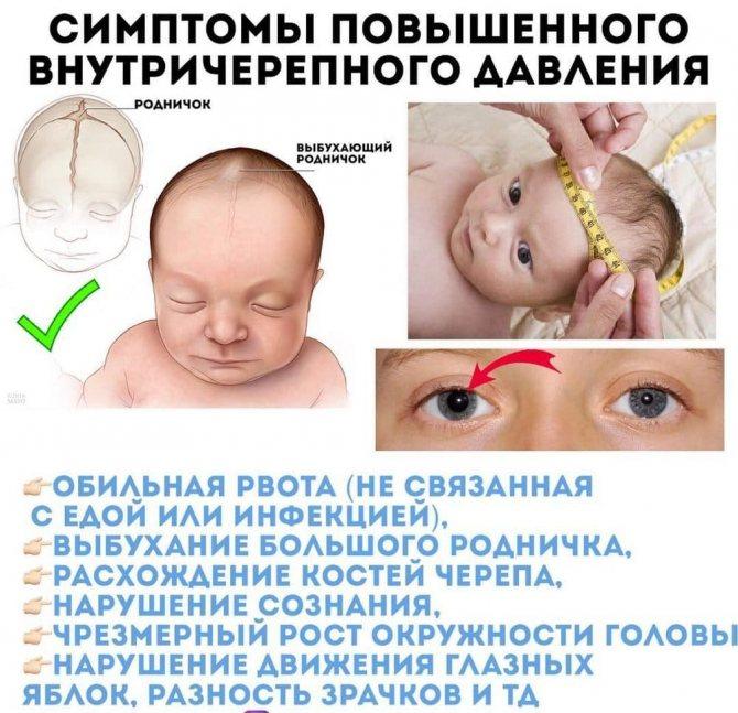Повышенное внутричерепное давление у ребенка, грудничка