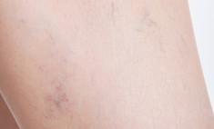 Почему на коже появляются синяки без причины