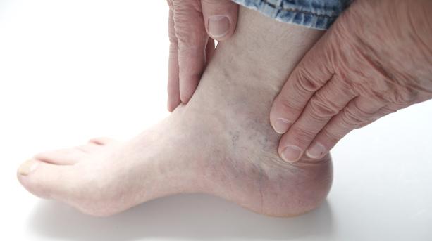 Артрит голеностопного сустава: симптомы и лечение, причины, виды, фото