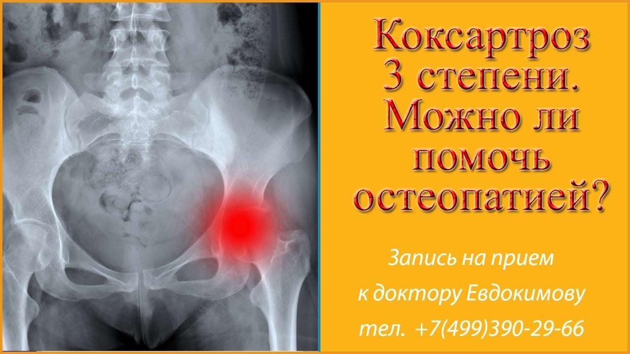 Питание при коксартрозе тазобедренного сустава лечение