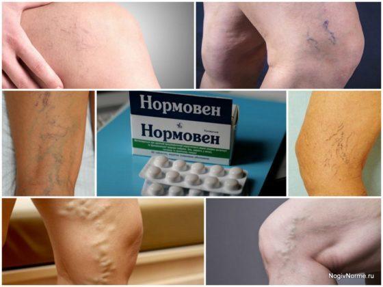 Крем нормавен: эффективное средство для ног