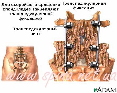 Хирургический спондилодез шейного отдела позвоночника