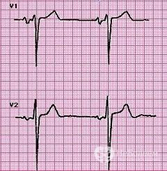 Что такое гипертрофия желудочков сердца
