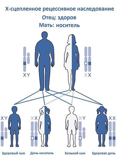 Дисгенезия гонад (синдром шерешевского - тернера)