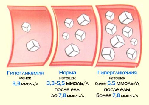 Нормальный уровень глюкозы в крови у мужчин, отклонения, лечение