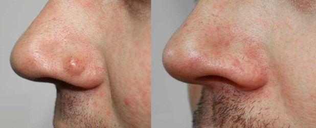 От чего появляются бородавки на теле