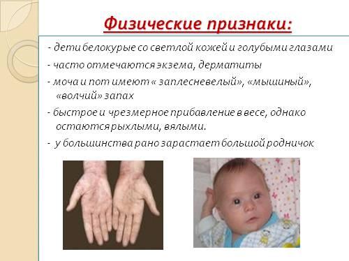 Фенилкетонурия у детей: признаки заболевания, лечение, клинические рекомендации