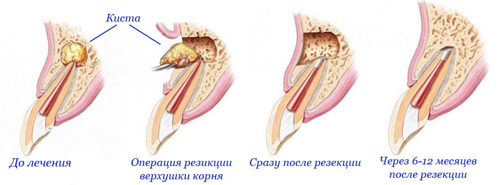 Лечение кистогранулемы зуба