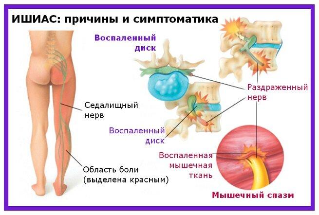 Вертеброгенная люмбоишиалгия – что это такое? люмбаго с ишиасом – симптомы, лечение