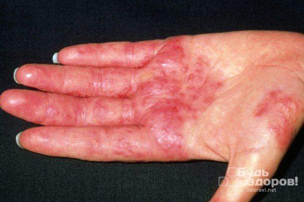 Токсикодермия (токсико-аллергический дерматит): причины, проявления и лечение
