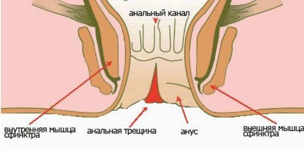 Операция при анальной трещине: иссечение, удаление, сфинктеротомия