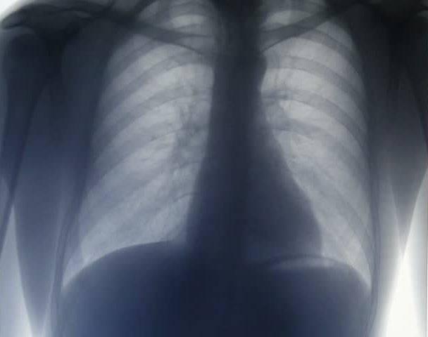 Покажет ли флюорография воспаление лёгких
