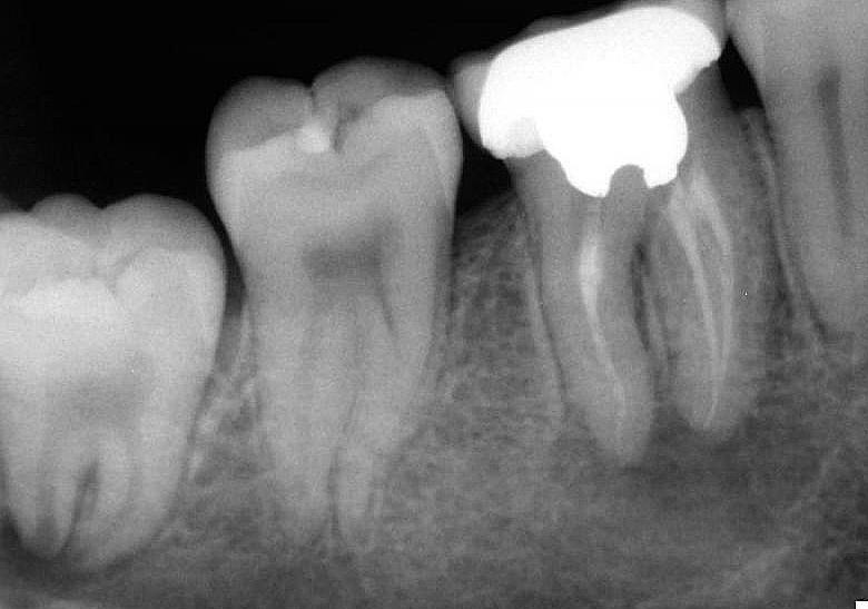 Причины появления кистогранулемы зуба, характерные признаки и особенности терапии