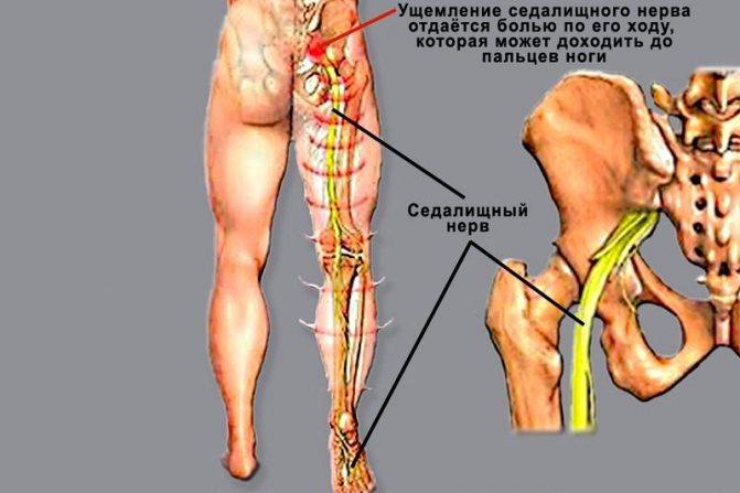 Современные методы лечения люмбоишиалгии