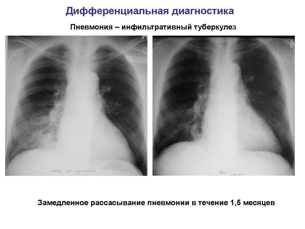 Возможен ли переход пневмонии в туберкулез
