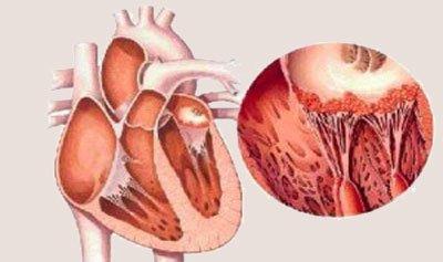 Миокардит - причины и патогенез. симптомы у взрослых. миокардит у детей. острый, подострый и хронический