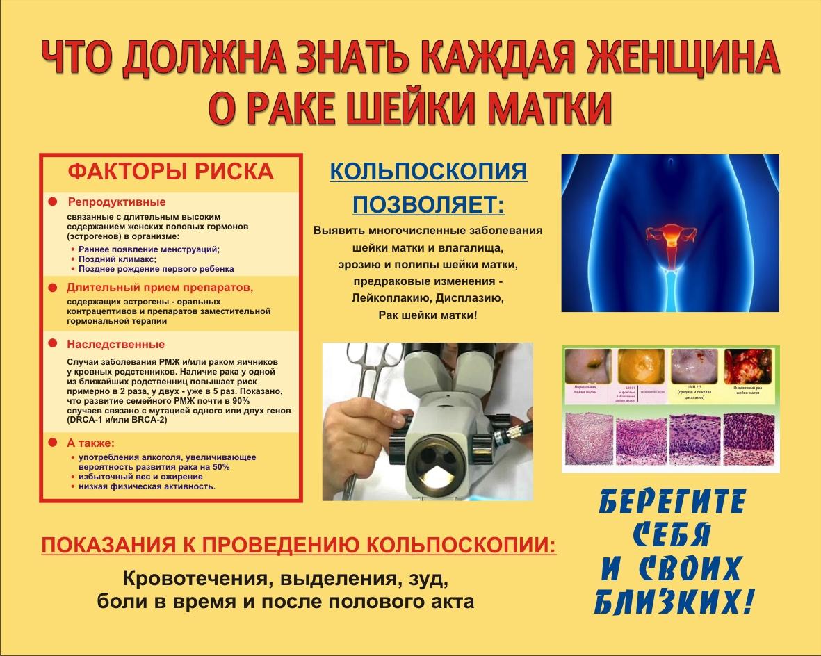 Рак шейки матки: статистика