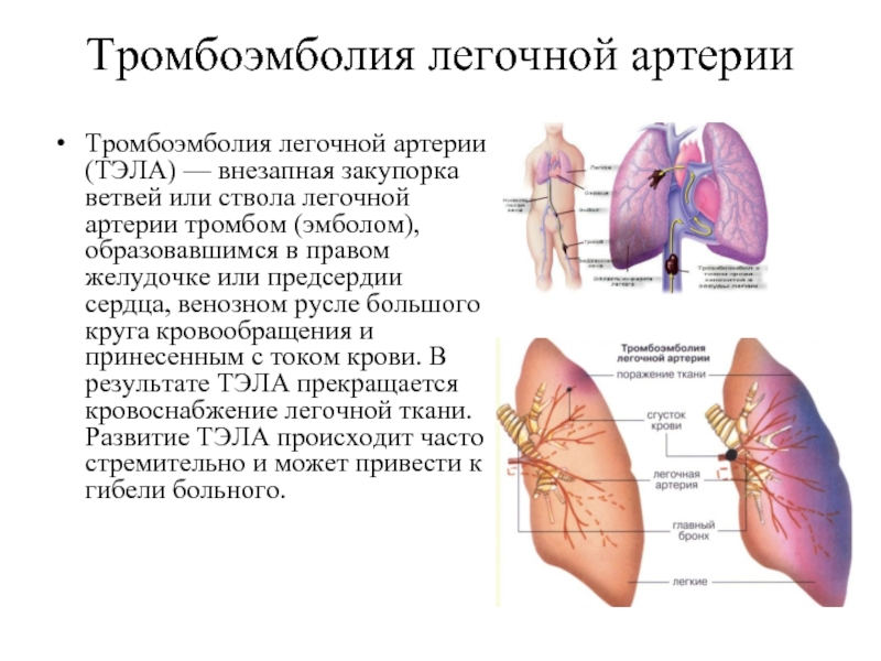 Признаки и лечение артериального тромбоза нижних конечностей