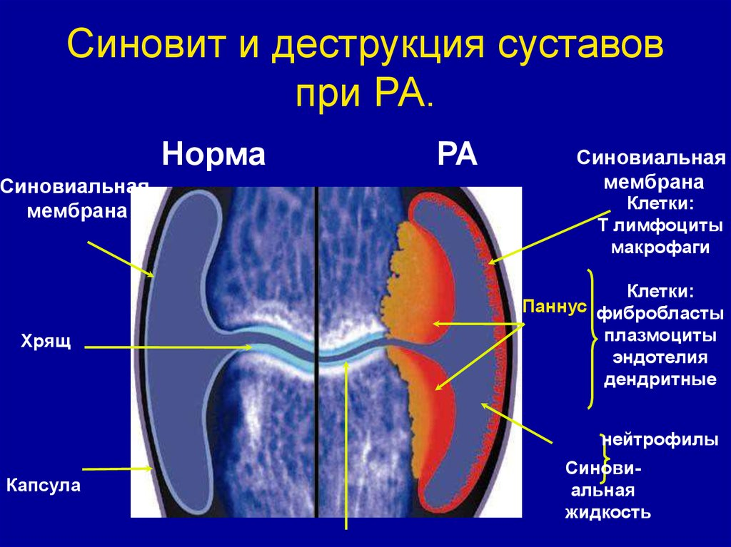 Рекомендации при артрите