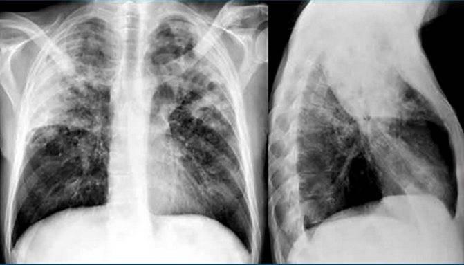 Сколько лечится туберкулез легких