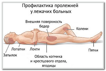 Быстро вылечить пролежни и снять симптомы