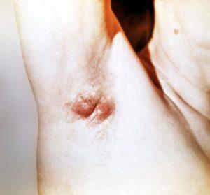 Как развивается воспаление подмышечных потовых желез и его симптомы