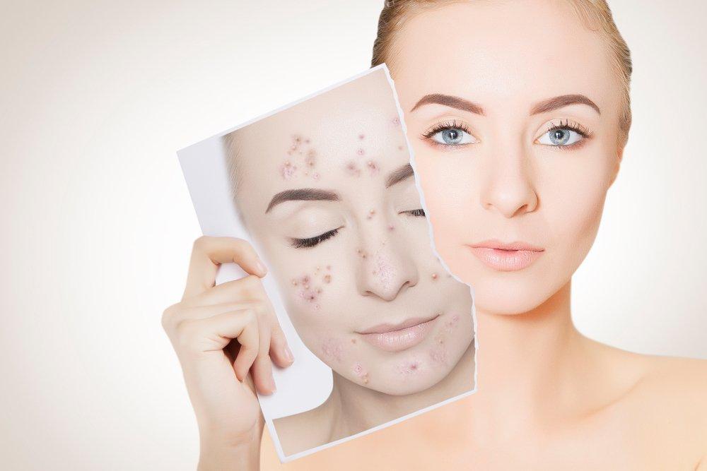 Угревая сыпь, угревая болезнь – лечение угревой сыпи, лазерное лечение акне
