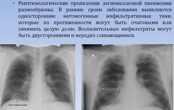 Бронхопневмония – симптомы, лечение, формы, стадии, диагностика