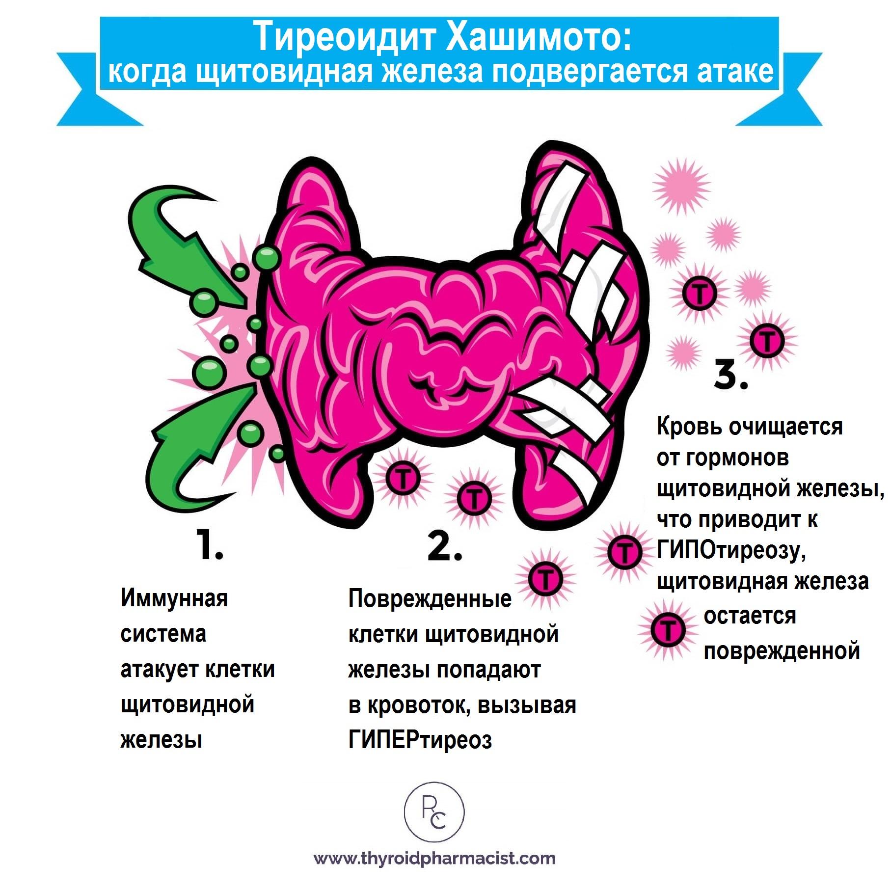 Причины хронического тиреоидита