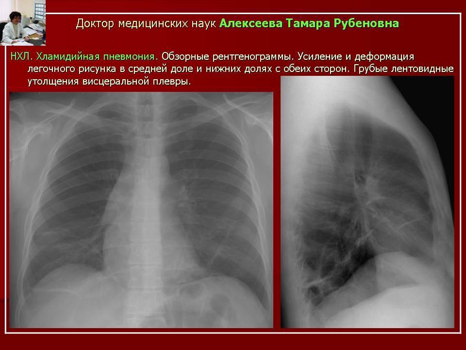 Что такое микоплазменная пневмония, чем она отличается, особенности симптомов, правильная организация лечения заболевания