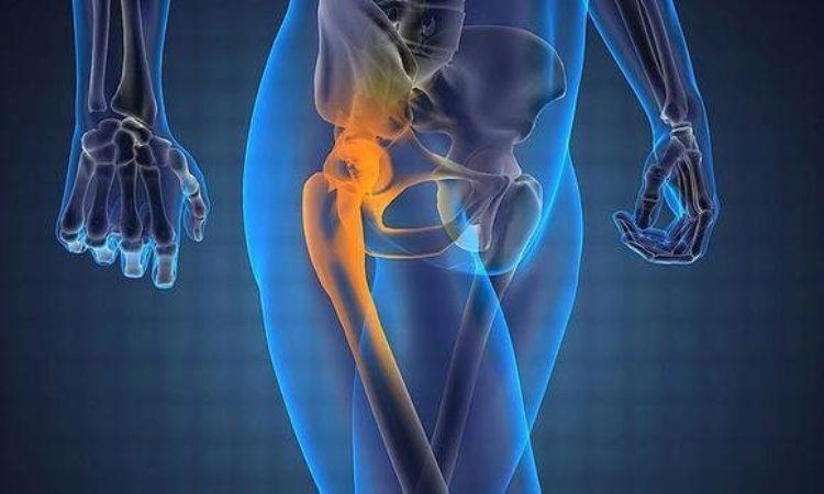 Каким должно быть правильное питание при коксартрозе тазобедренного сустава 1, 2 и 3 степени?