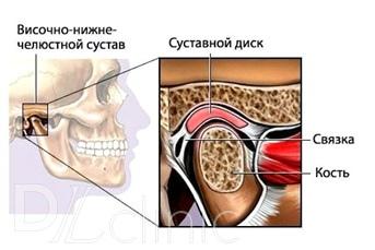 Мышечно-суставные дисфункции