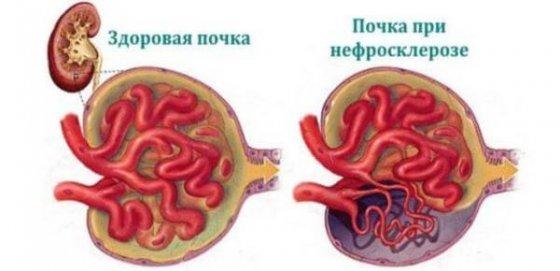 Нефросклероз или сморщенная почка: виды заболевания, диагностика и лечение у взрослых и детей, прогноз жизни и другие аспекты болезни
