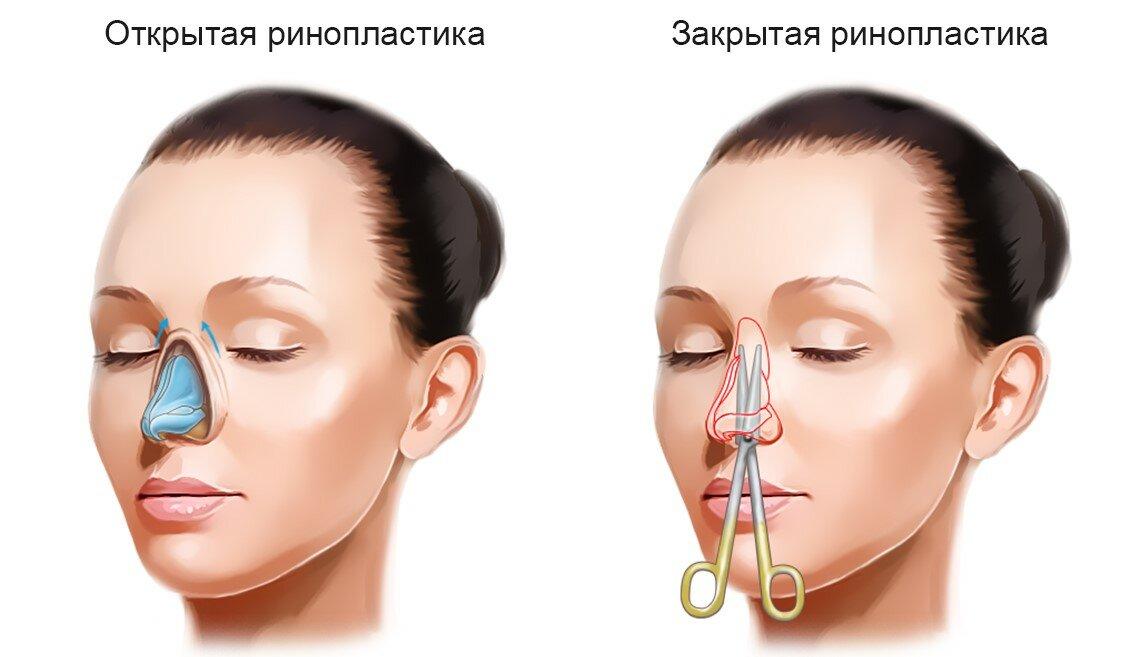 Безоперационная ринопластика носа: виды, как делают и уход после