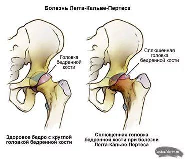 Болезнь пертеса (легга кальве пертеса, асептический некроз головки бедренной кости) у детей – симптомы, лечение, стадии