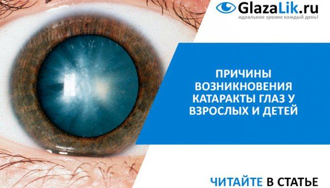 Виды глазных капель от катаракты