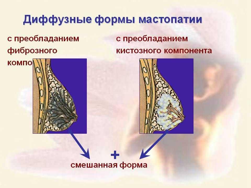 Мастопатия: симптомы и лечение патологии молочной железы