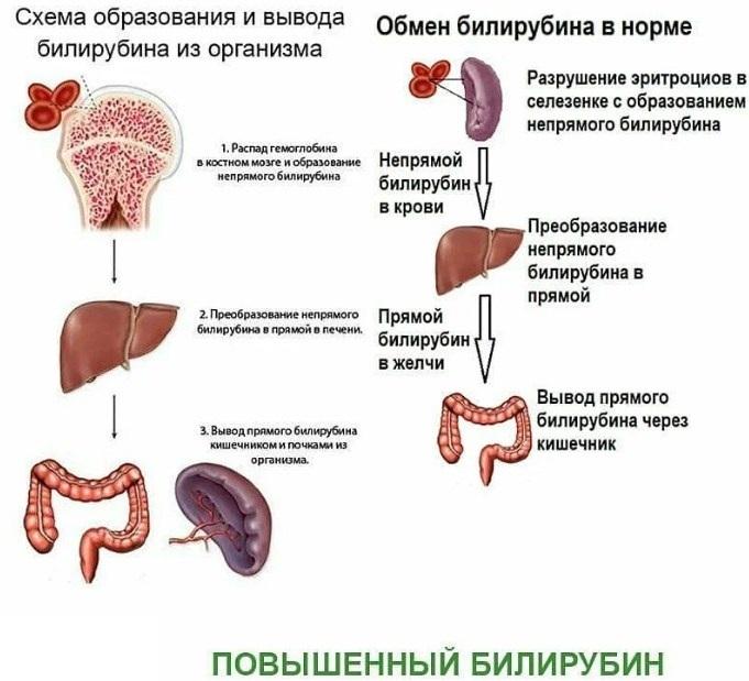 Высокий билирубин в крови