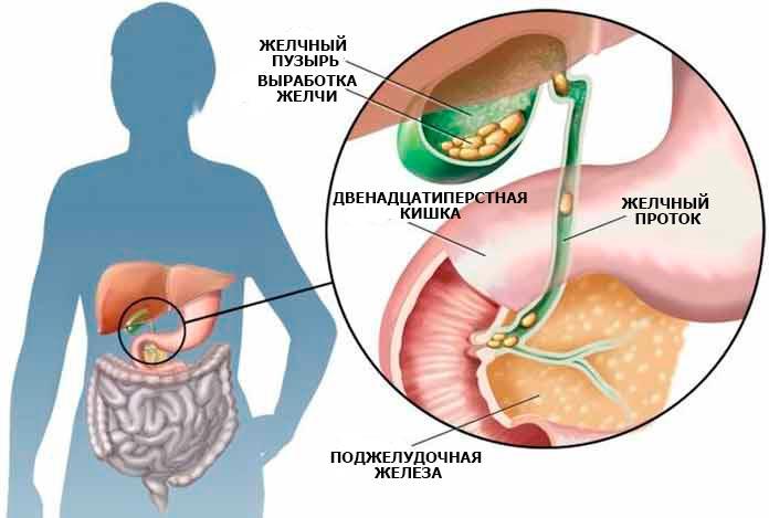 Болезни печени желчного пузыря поджелудочной железы лечение
