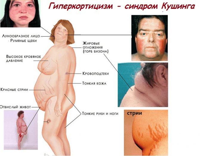 Гиперкортицизм (болезнь иценко-кушинга): причины, симптомы, лечение