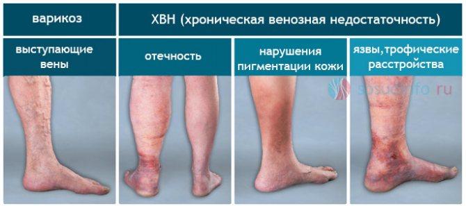 Нарушения пигментации кожи (витилиго, альбинизм, мелазма): причины, симптомы, диагностика, лечение