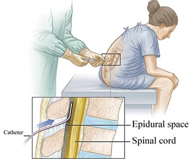 Анестезия при кесаревом сечении - общая, спинальная, эпидуральная