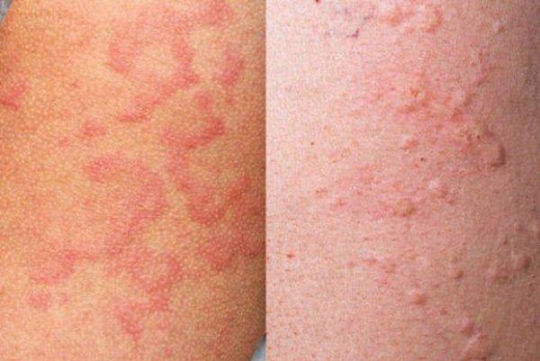 Токсидермия: симптомы и лечение токсико-аллергического дерматита