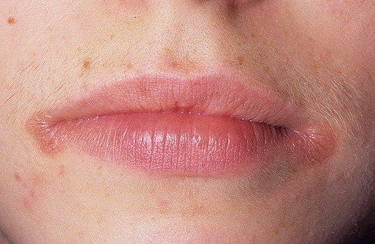 Чем лечить заеды на губах - причины