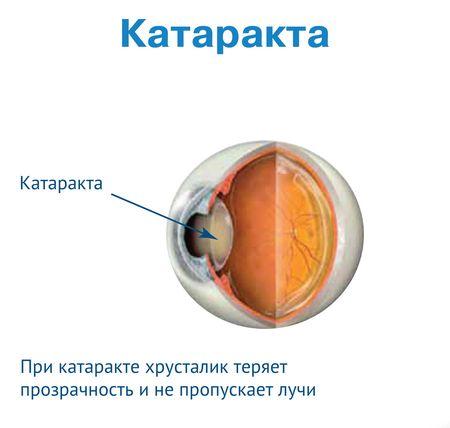 Каталин глазные капли (инструкция по применению, аналоги, дешевые)