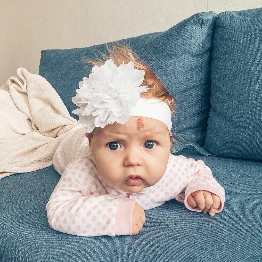Криогенное лечение доброкачественных сосудистых опухолей (гемангиом) у детей