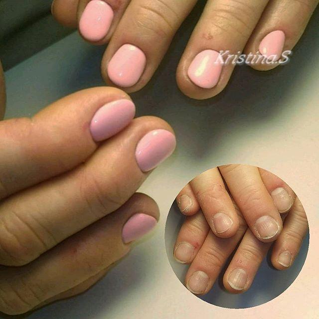 Некрасивые заусенцы на пальцах рук: причины и лечение
