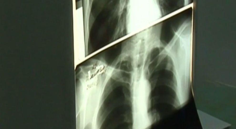 Можно ли вылечиться от туберкулёза лёгких